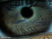 Pre Oculae Tear Film (POTF) Lipid coloured wave pattern